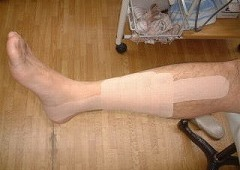 シンスプリント(脛骨過労性骨膜炎)