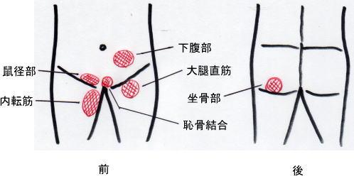 グロイン・ペイン症候群(鼠径部痛症候群)