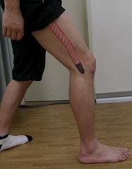 ランナー膝(腸脛靱帯炎)