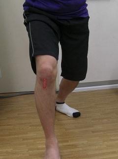 ジャンパー膝(膝蓋靱帯炎)