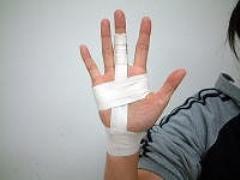 突き指 屈筋腱を保護するためのテーピング