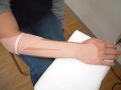 テニス肘(上腕骨外側上顆炎)